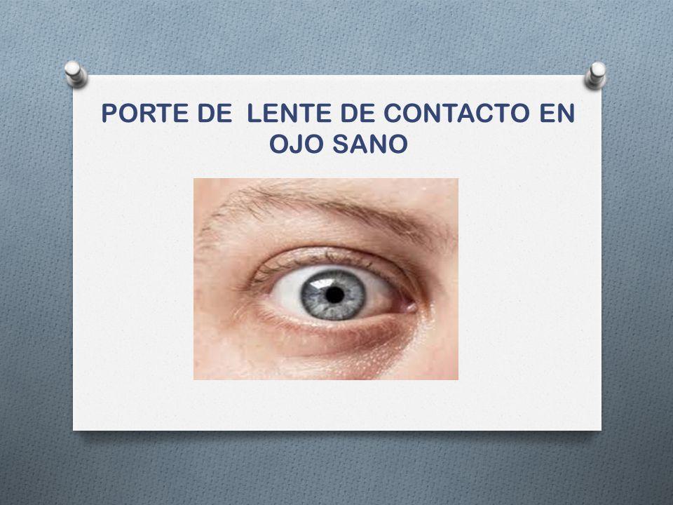 PORTE DE LENTE DE CONTACTO EN OJO SANO