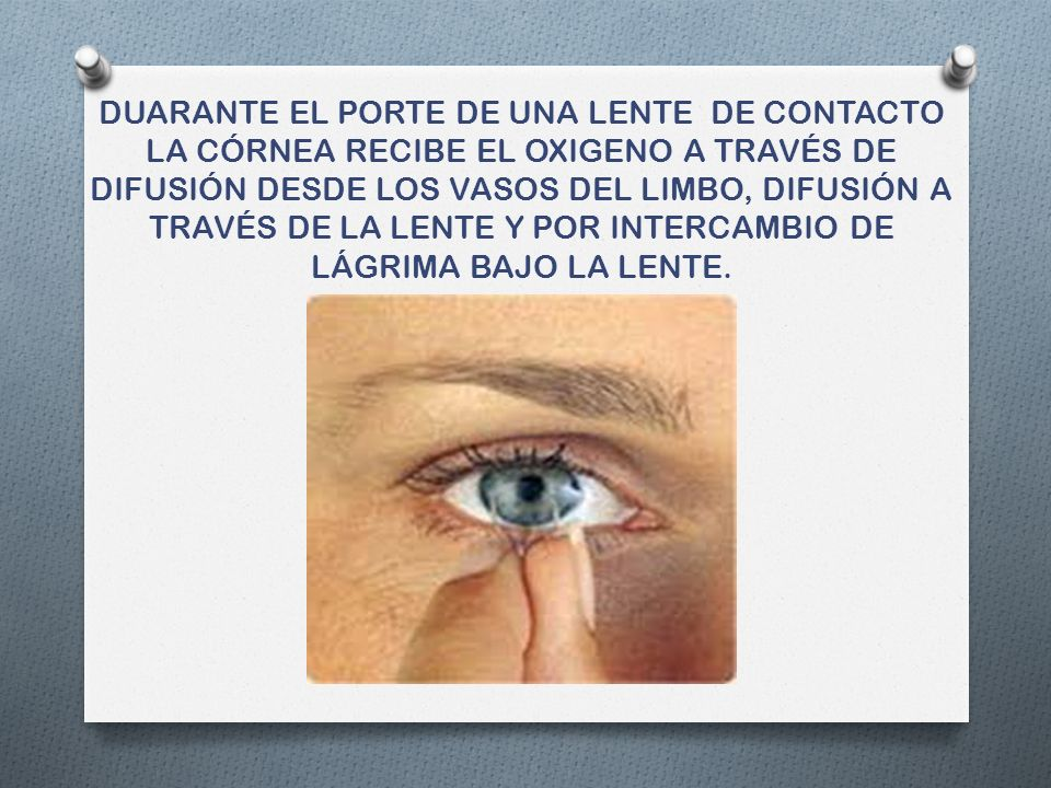 Alteraciones lagrimales O Las 2 principales alteraciones son de tipo cuantitativo: Disminución de la secreción lagrimal, pacientes se quejan de sensación de cuerpo extraño (síndrome ojo seco).