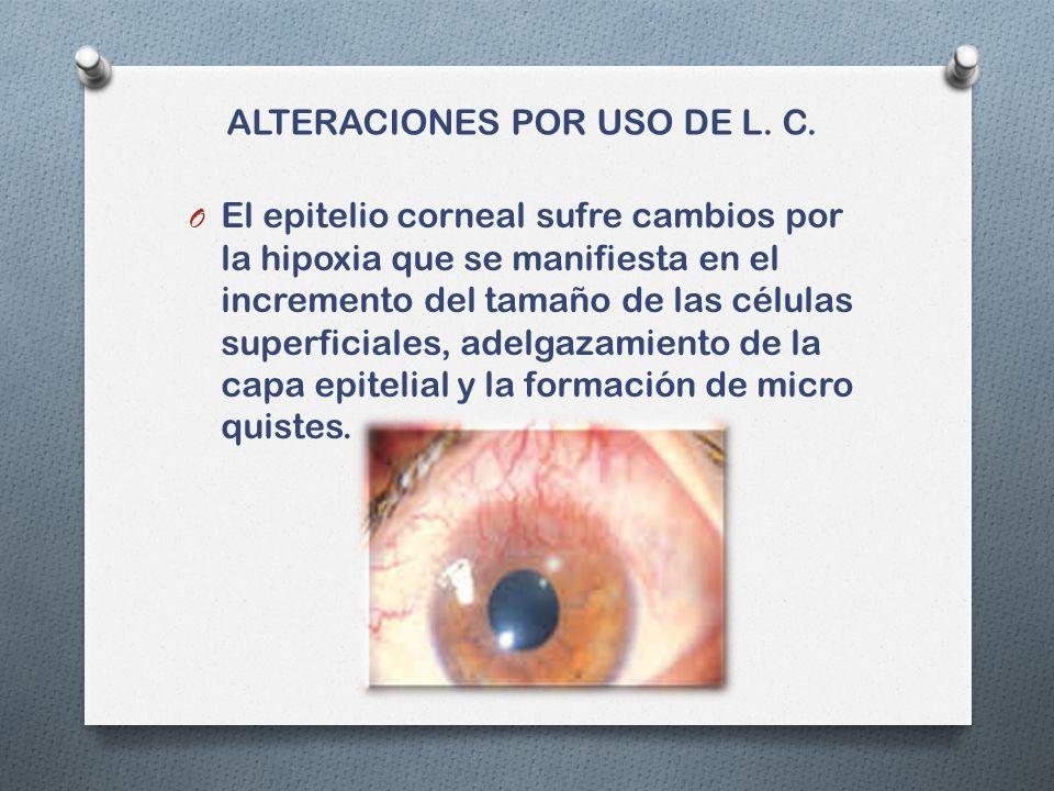 ALTERACIONES POR USO DE L.C.