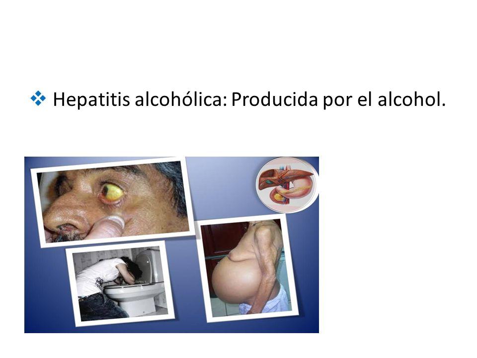  Hepatitis alcohólica: Producida por el alcohol.