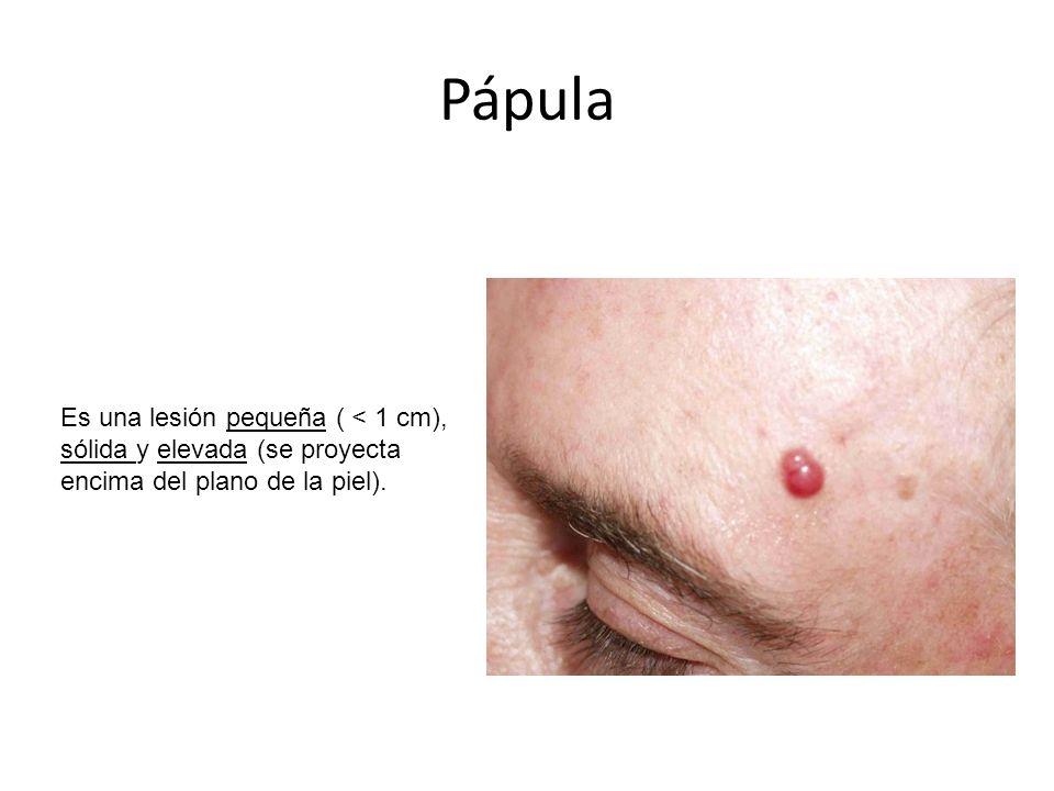 Pápula Es una lesión pequeña ( < 1 cm), sólida y elevada (se proyecta encima del plano de la piel).