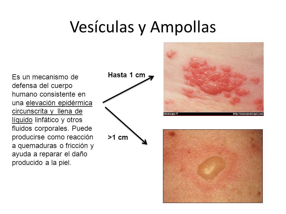 Vesículas y Ampollas Es un mecanismo de defensa del cuerpo humano consistente en una elevación epidérmica circunscrita y llena de líquido linfático y otros fluidos corporales.