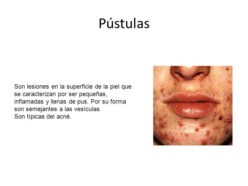 Pústulas Son lesiones en la superficie de la piel que se caracterizan por ser pequeñas, inflamadas y llenas de pus.