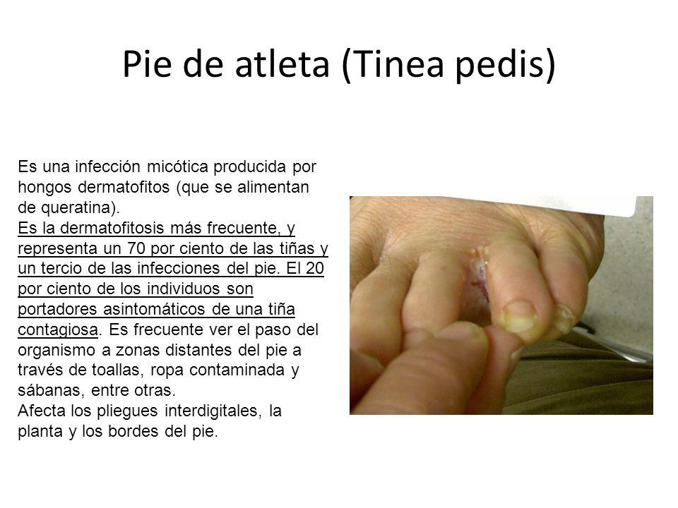 Pie de atleta (Tinea pedis) Es una infección micótica producida por hongos dermatofitos (que se alimentan de queratina).