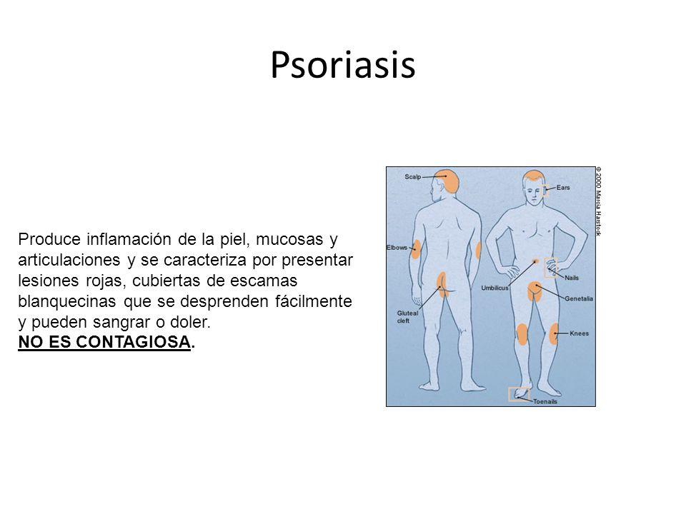 Psoriasis Produce inflamación de la piel, mucosas y articulaciones y se caracteriza por presentar lesiones rojas, cubiertas de escamas blanquecinas que se desprenden fácilmente y pueden sangrar o doler.