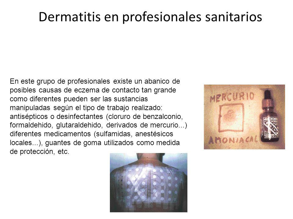 Dermatitis en profesionales sanitarios En este grupo de profesionales existe un abanico de posibles causas de eczema de contacto tan grande como diferentes pueden ser las sustancias manipuladas según el tipo de trabajo realizado: antisépticos o desinfectantes (cloruro de benzalconio, formaldehido, glutaraldehido, derivados de mercurio...) diferentes medicamentos (sulfamidas, anestésicos locales...), guantes de goma utilizados como medida de protección, etc.