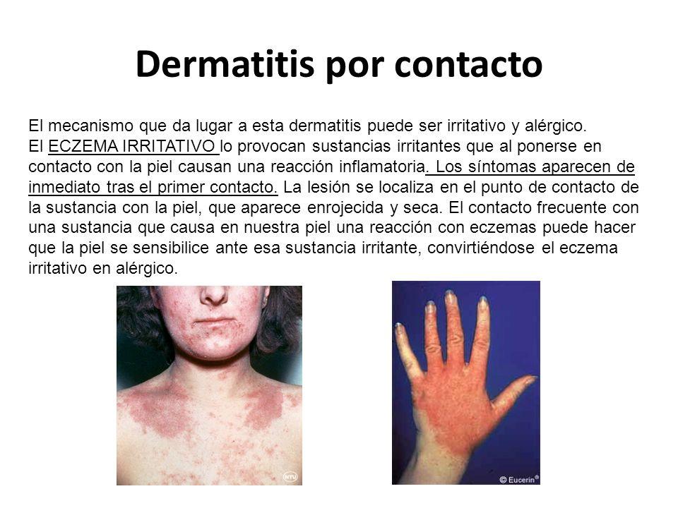 Dermatitis por contacto El mecanismo que da lugar a esta dermatitis puede ser irritativo y alérgico.