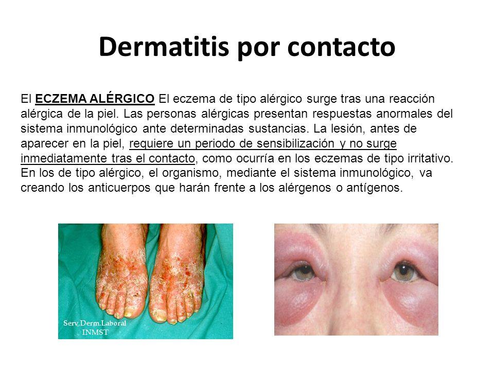 Dermatitis por contacto El ECZEMA ALÉRGICO El eczema de tipo alérgico surge tras una reacción alérgica de la piel.