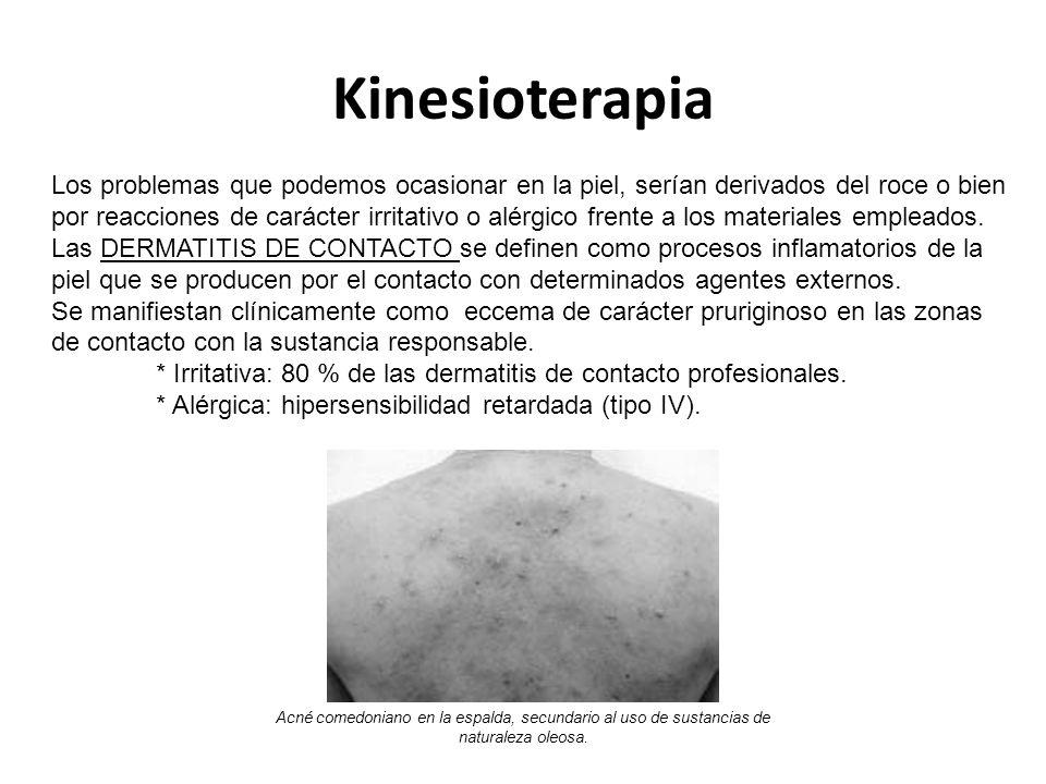 Kinesioterapia Los problemas que podemos ocasionar en la piel, serían derivados del roce o bien por reacciones de carácter irritativo o alérgico frente a los materiales empleados.
