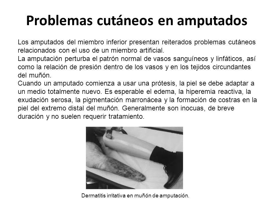 Problemas cutáneos en amputados Los amputados del miembro inferior presentan reiterados problemas cutáneos relacionados con el uso de un miembro artificial.