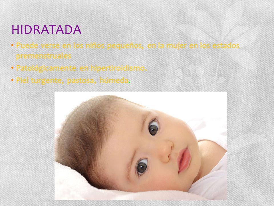 HIDRATADA Puede verse en los niños pequeños, en la mujer en los estados premenstruales Patológicamente en hipertiroidismo.