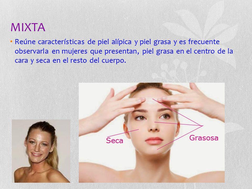 MIXTA Reúne características de piel alípica y piel grasa y es frecuente observarla en mujeres que presentan, piel grasa en el centro de la cara y seca en el resto del cuerpo.