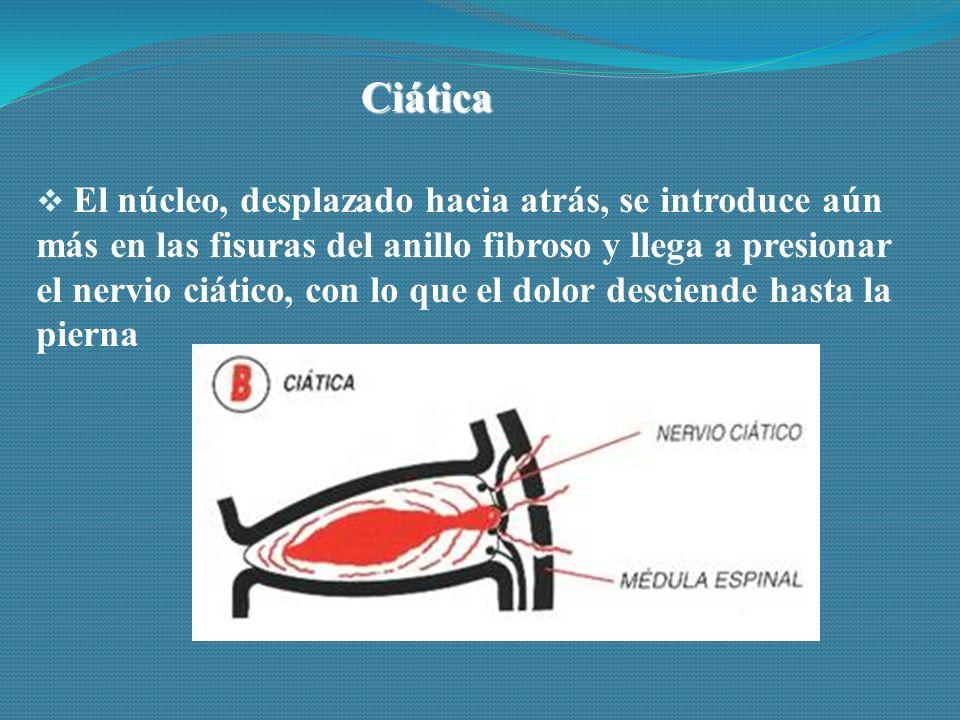 Ciática  El núcleo, desplazado hacia atrás, se introduce aún más en las fisuras del anillo fibroso y llega a presionar el nervio ciático, con lo que el dolor desciende hasta la pierna