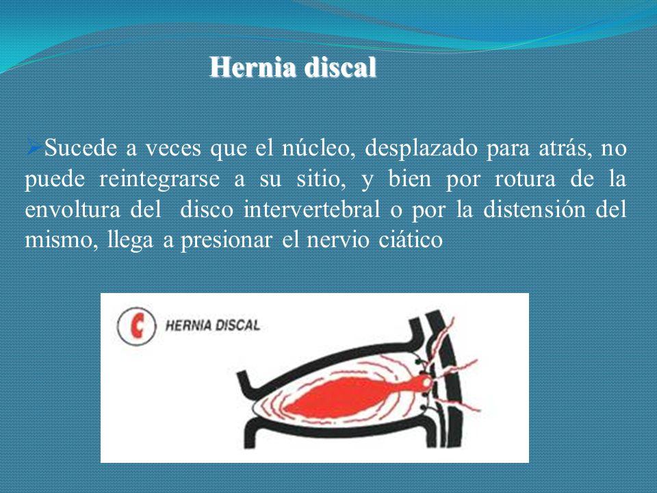 Hernia discal  Sucede a veces que el núcleo, desplazado para atrás, no puede reintegrarse a su sitio, y bien por rotura de la envoltura del disco intervertebral o por la distensión del mismo, llega a presionar el nervio ciático