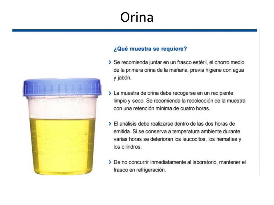 Orina