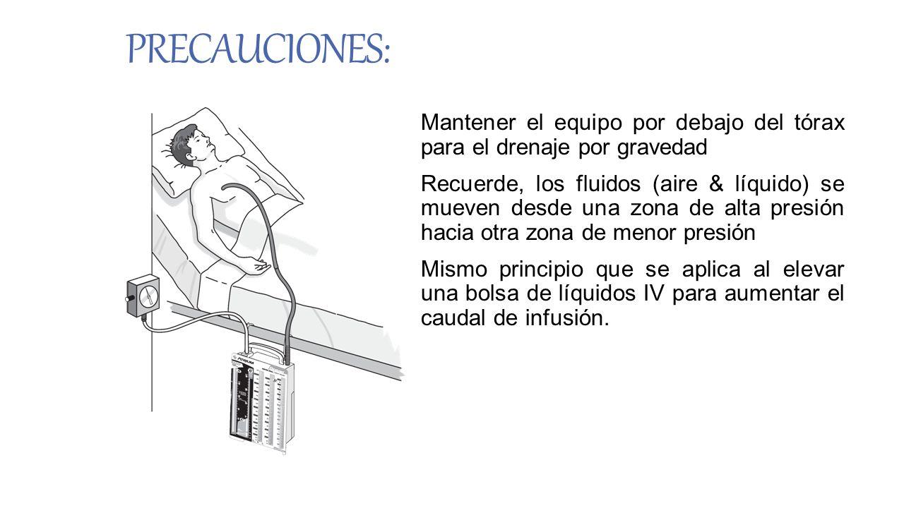 PRECAUCIONES: Mantener el equipo por debajo del tórax para el drenaje por gravedad Recuerde, los fluidos (aire & líquido) se mueven desde una zona de