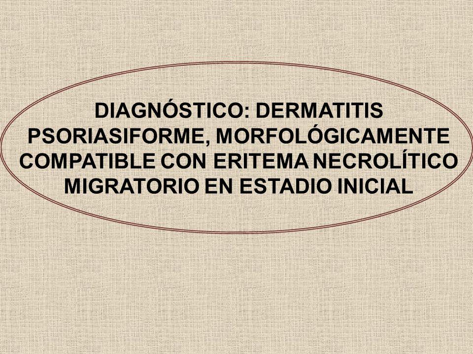 DIAGNÓSTICO: DERMATITIS PSORIASIFORME, MORFOLÓGICAMENTE COMPATIBLE CON ERITEMA NECROLÍTICO MIGRATORIO EN ESTADIO INICIAL