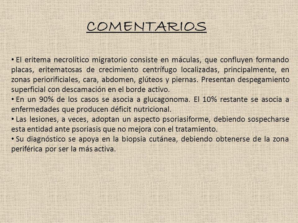 COMENTARIOS El eritema necrolítico migratorio consiste en máculas, que confluyen formando placas, eritematosas de crecimiento centrífugo localizadas, principalmente, en zonas periorificiales, cara, abdomen, glúteos y piernas.