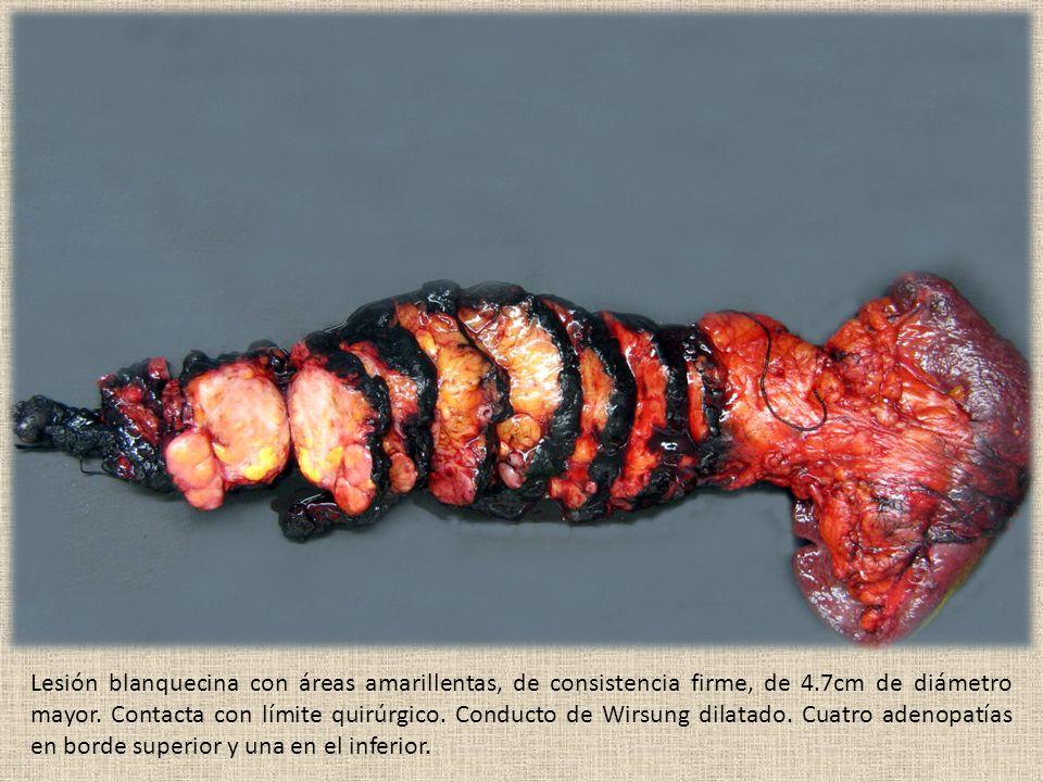 Lesión blanquecina con áreas amarillentas, de consistencia firme, de 4.7cm de diámetro mayor.