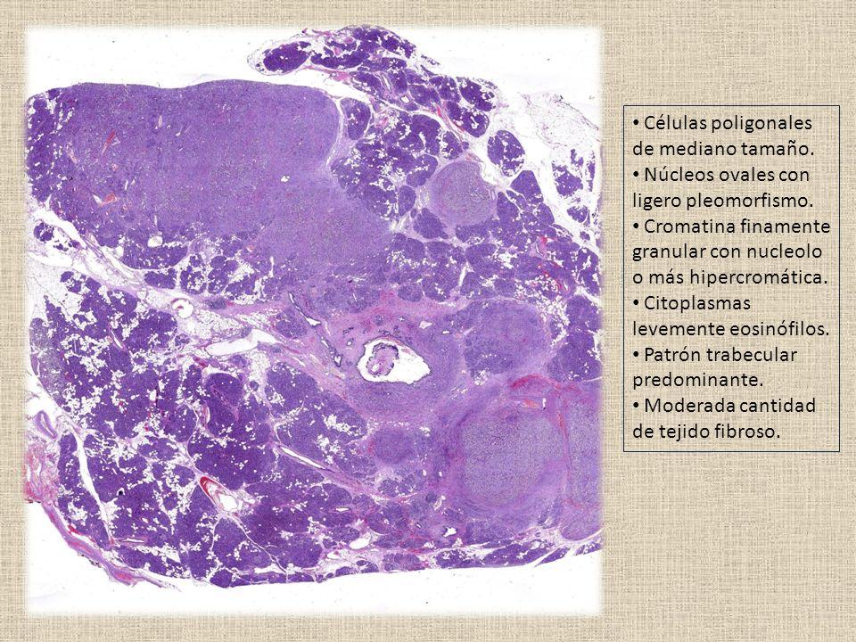 Células poligonales de mediano tamaño. Núcleos ovales con ligero pleomorfismo.