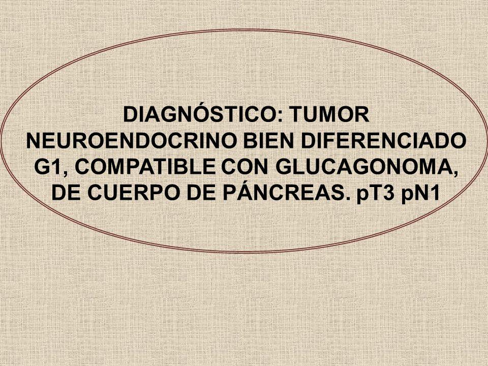 DIAGNÓSTICO: TUMOR NEUROENDOCRINO BIEN DIFERENCIADO G1, COMPATIBLE CON GLUCAGONOMA, DE CUERPO DE PÁNCREAS.