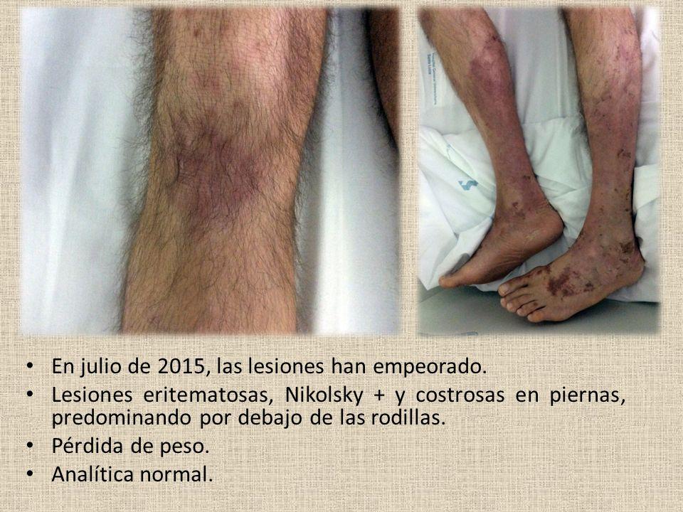 En julio de 2015, las lesiones han empeorado.