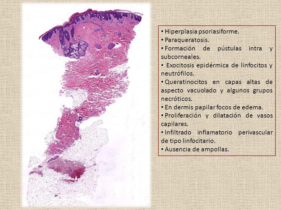 Hiperplasia psoriasiforme. Paraqueratosis. Formación de pústulas intra y subcorneales.
