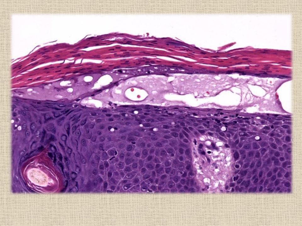 Células poligonales de mediano tamaño.Núcleos ovales con ligero pleomorfismo.