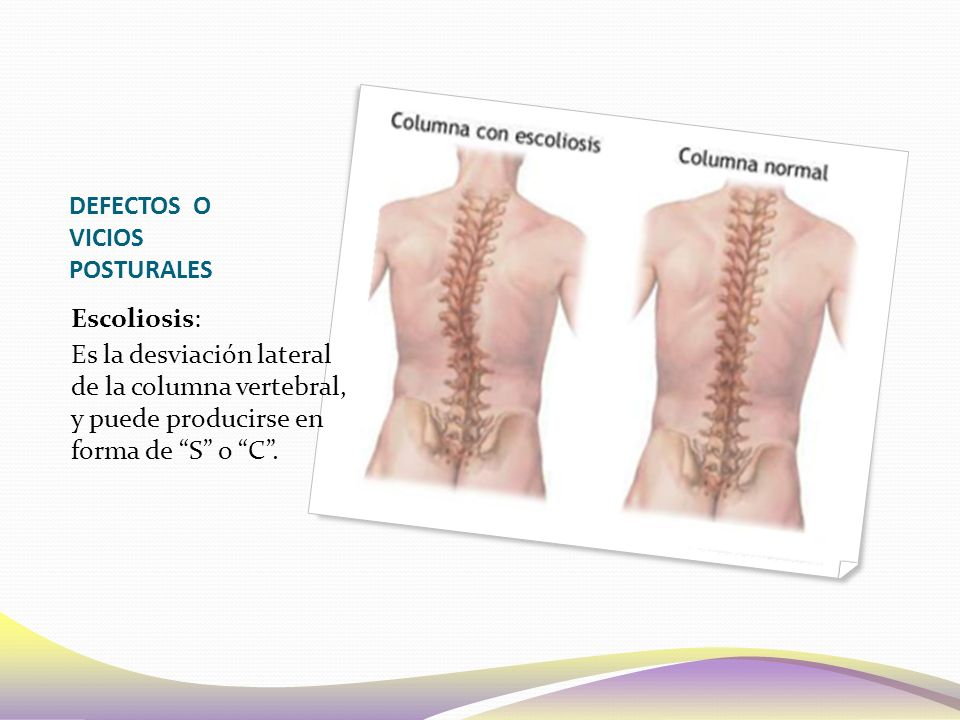 DEFECTOS O VICIOS POSTURALES Escoliosis: Es la desviación lateral de la columna vertebral, y puede producirse en forma de S o C .