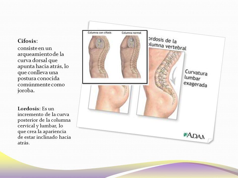 Cifosis: consiste en un arqueamiento de la curva dorsal que apunta hacia atrás, lo que conlleva una postura conocida comúnmente como joroba.