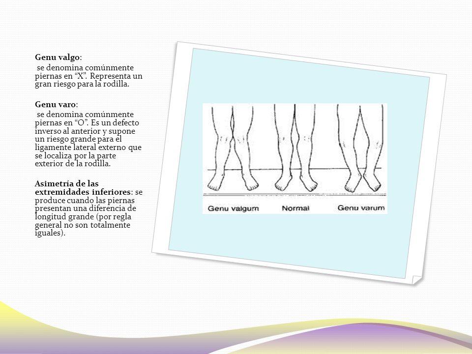 Genu valgo: se denomina comúnmente piernas en X .