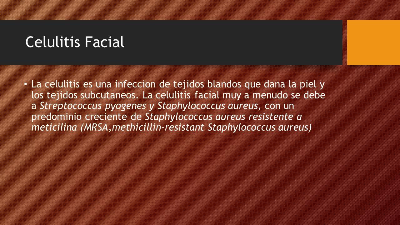 Celulitis Facial Con menos frecuencia la celulitis representa una extension de una infeccion facial mas profunda.