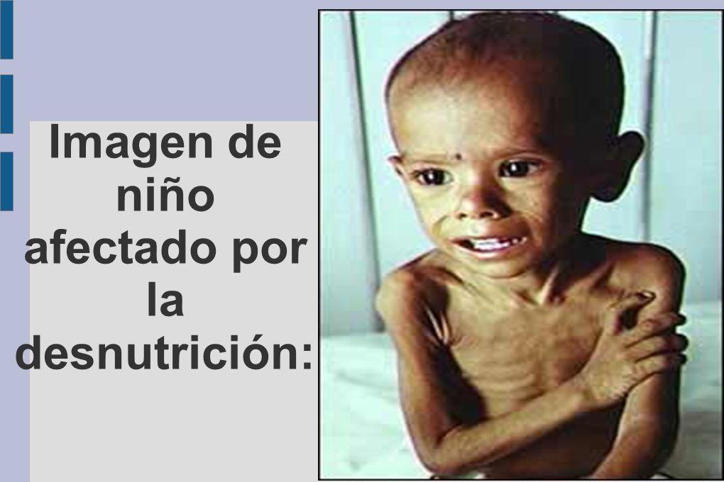 Imagen de niño afectado por la desnutrición: