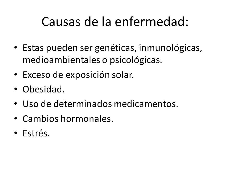 Causas de la enfermedad: Estas pueden ser genéticas, inmunológicas, medioambientales o psicológicas. Exceso de exposición solar. Obesidad. Uso de dete