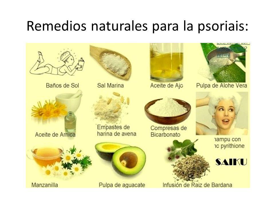 Remedios naturales para la psoriais: