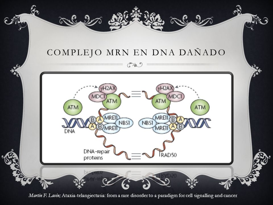 COMPLEJO MRN EN DNA DAÑADO Martin F. Lavin; Ataxia-telangiectasia: from a rare disorder to a paradigm for cell signalling and cancer