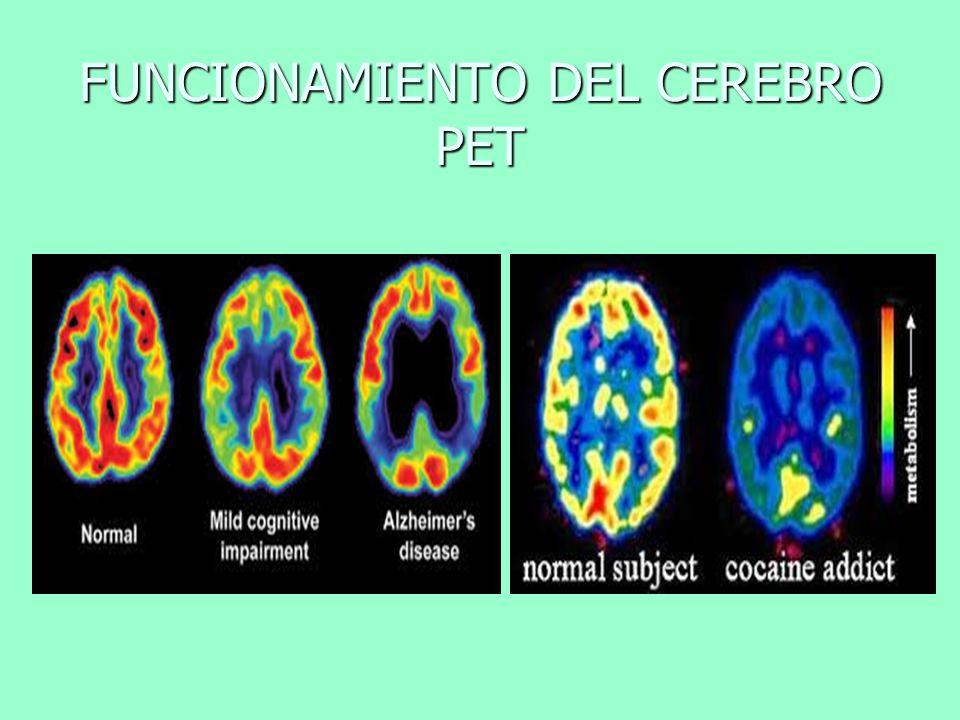 FUNCIONAMIENTO DEL CEREBRO PET