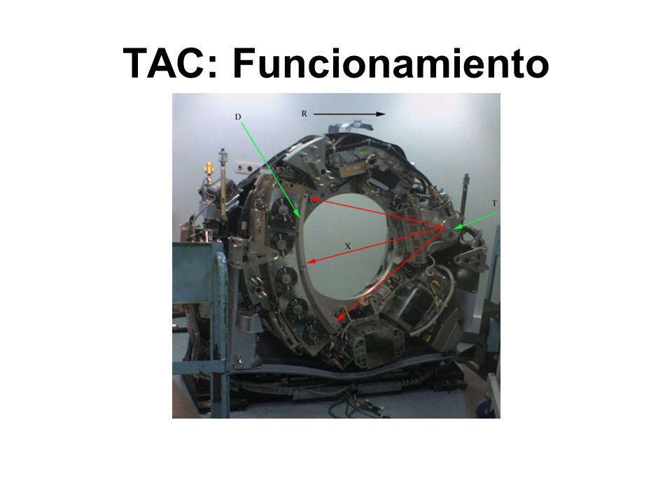 TAC: Funcionamiento