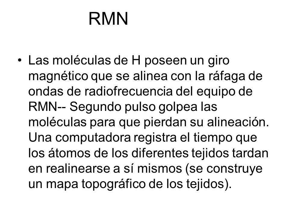 RMN Las moléculas de H poseen un giro magnético que se alinea con la ráfaga de ondas de radiofrecuencia del equipo de RMN-- Segundo pulso golpea las m