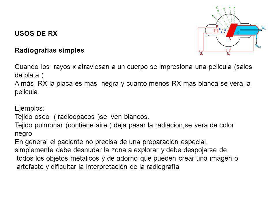 USOS DE RX Radiografias simples Cuando los rayos x atraviesan a un cuerpo se impresiona una pelicula (sales de plata ) A màs RX la placa es màs negra