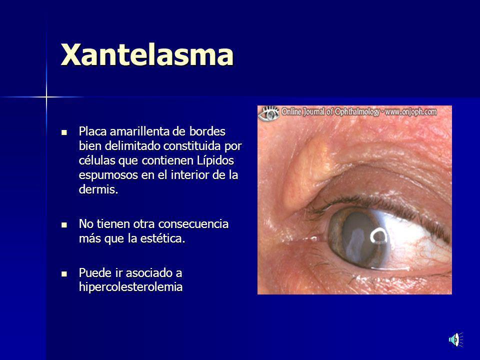 ENFERMEDADES DE LA PIEL.Herpes Zoster y simplex ENFERMEDADES DE LA PIEL.