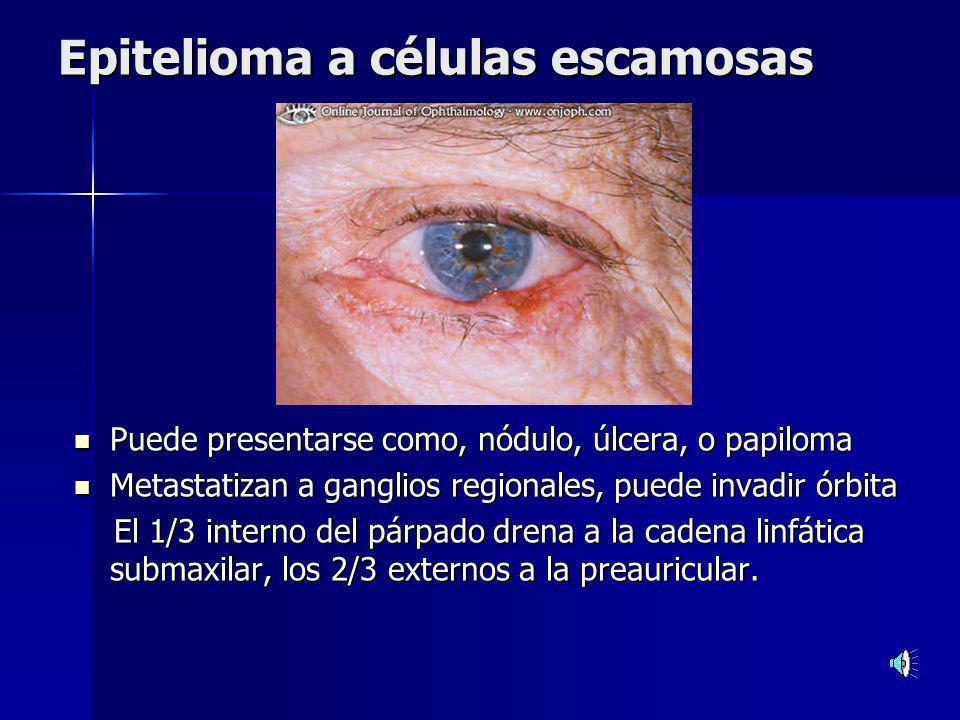 Epitelioma basocelular El más frecuente de los epiteliomas del párpado.