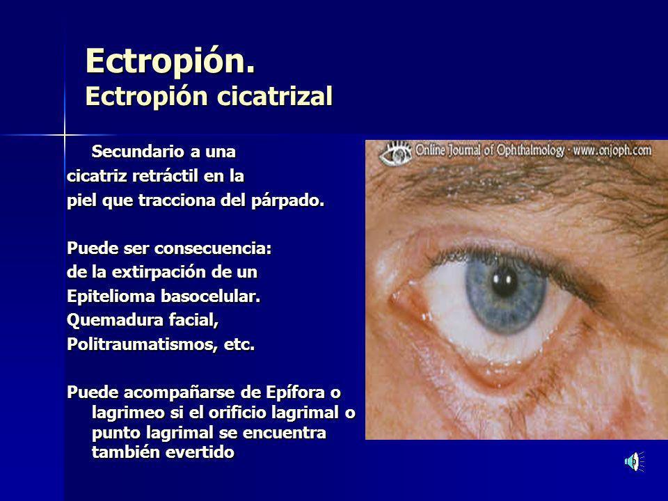 Entropión Entropión Entropión Senil.