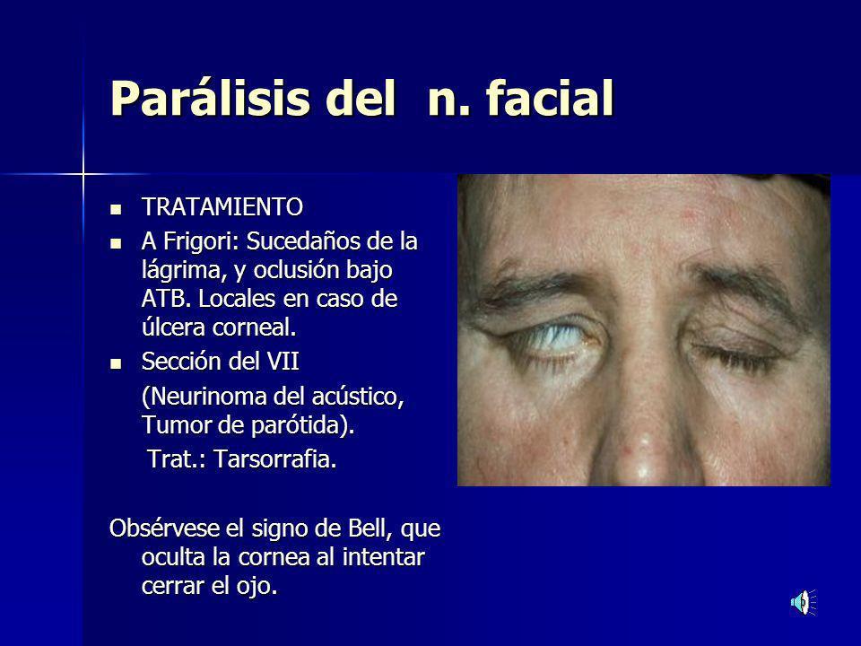 Ectropión senil y paralítico Ectropión senil y paralítico Síntomas: Sensación de cuerpo extraño.