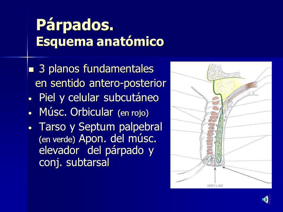 Blefarochalasis Pérdida de la elasticidad de la piel, que cae redundante sobre el borde palpebral, con herniación de la grasa orbitaria por ruptura del septum palpebral.