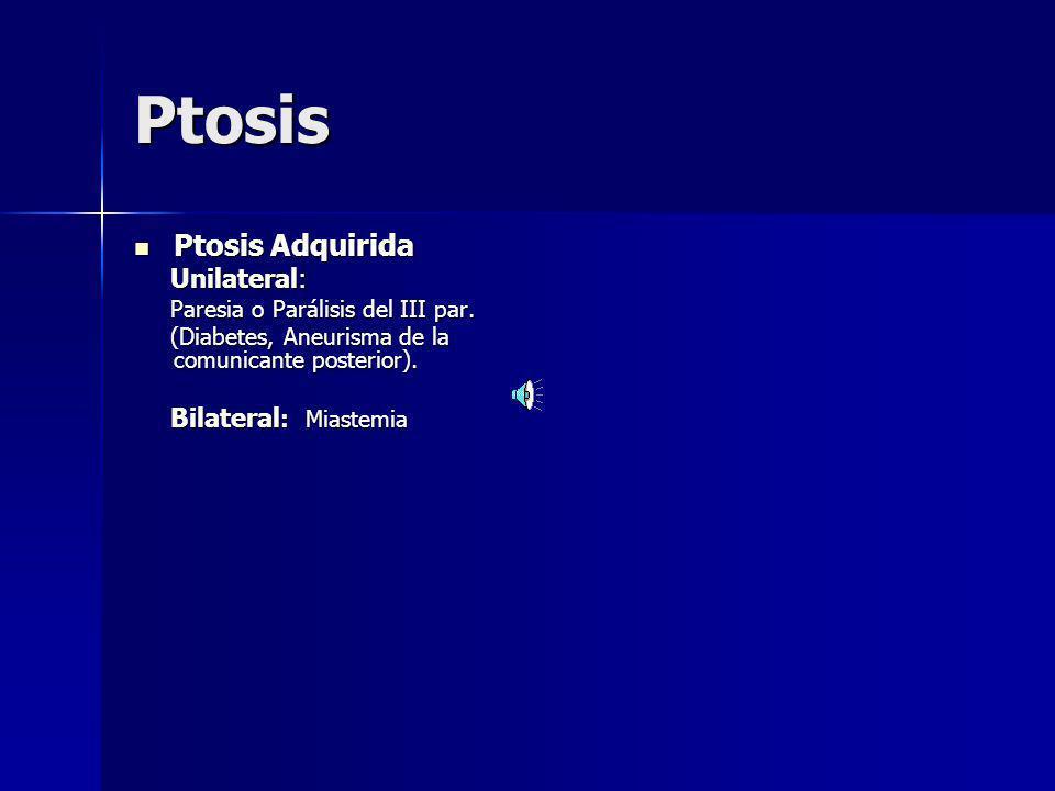 Ptosis palpebral Formas clínicas: congénita o adquirida Ptosis congénita Ptosis congénita Cuando es unilateral, y con el borde palpebral tangencial al borde superior de la pupila: Existe alto riesgo de Ambliopía por deprivación de estímulo visual.