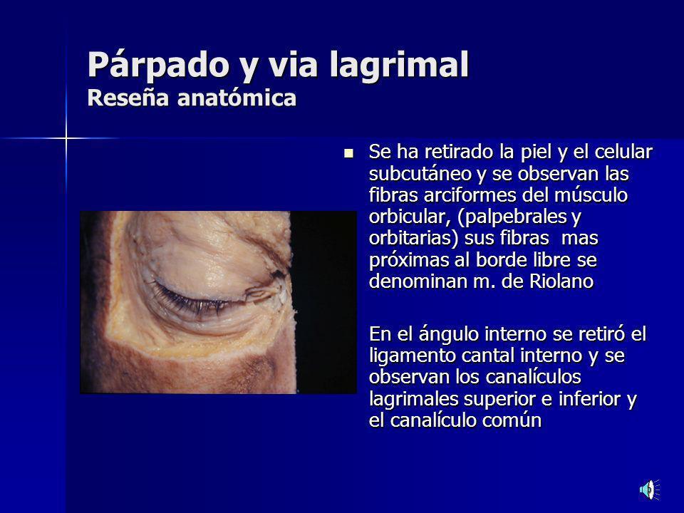 traumatismos Laceración del canalículo inferior Laceración del canalículo inferior Causas: Causas: Mordedura de perro.
