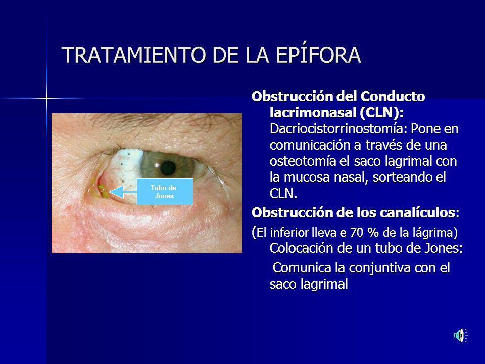 Tratamiento de las obstrucciones de la vía excretora Dacriocistorrinostomía: La flecha indica el lugar de la osteotomía que comunica el saco lagrimal con la fosa nasal.