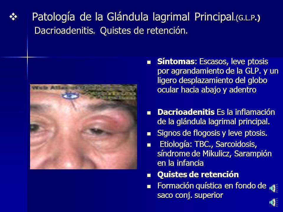TRATAMIENTO DE LA EPÍFORA Obstrucción del Conducto lacrimonasal (CLN): Dacriocistorrinostomía: Pone en comunicación a través de una osteotomía el saco lagrimal con la mucosa nasal, sorteando el CLN.