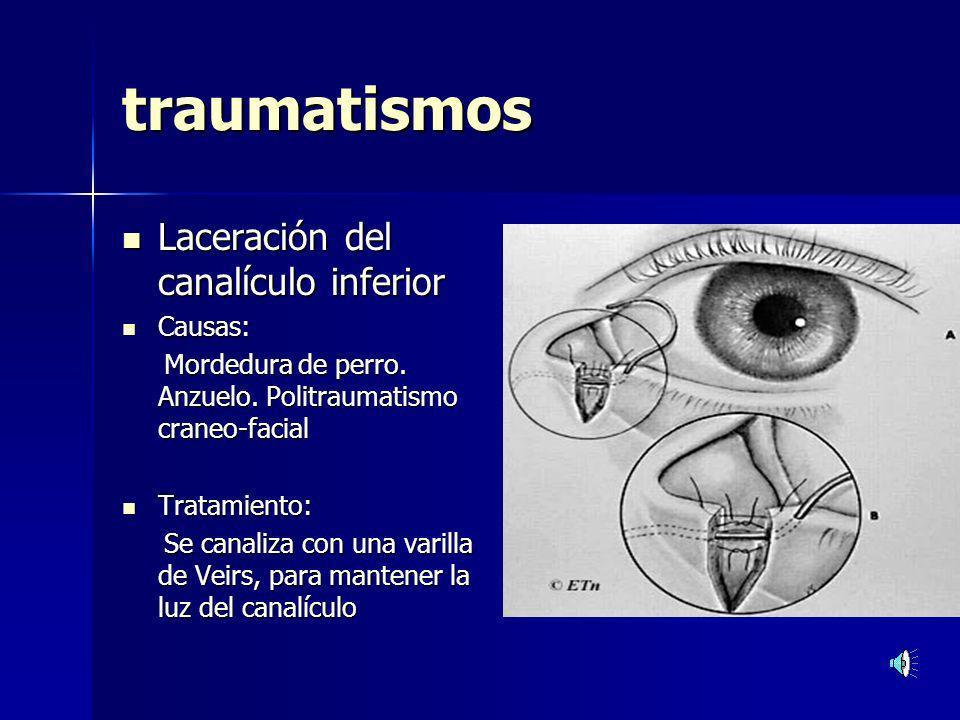 Tumores de la Glándula Lagrimal principal.